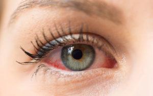 Protegeix els teus ulls de les al·lèrgies primaverals