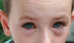 Conjuntivitis en nens